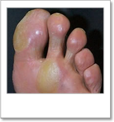 Calluses on large toe and ball of second toe