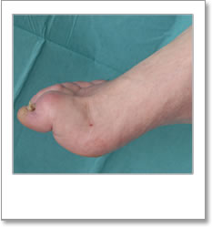 Foot with Pes cavus