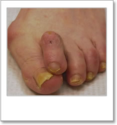 Structural abnormality - 2nd toe overlapping large toe