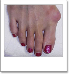 Structural abnormality between large toe and instep
